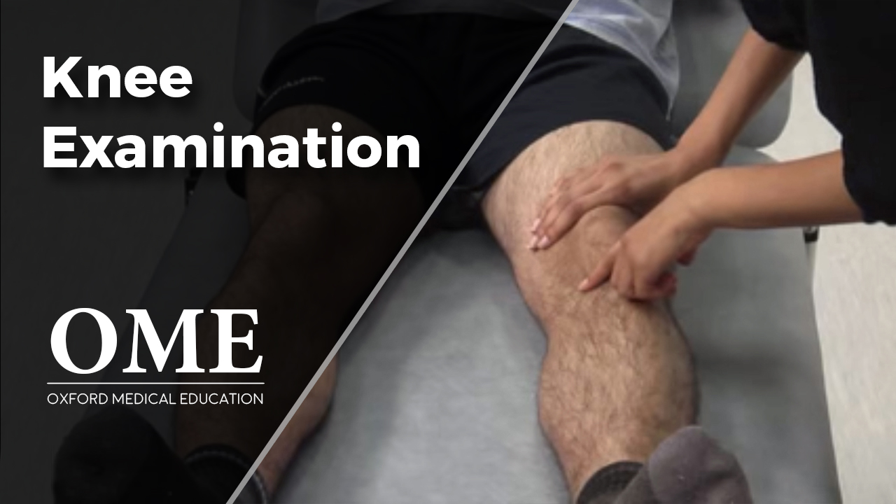 knee examination orthopaedics oxford medical education
