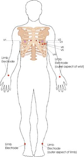 ECG - Fig 1 (leads)