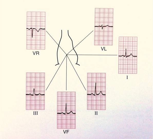 ECG - Fig 2 (electrical)