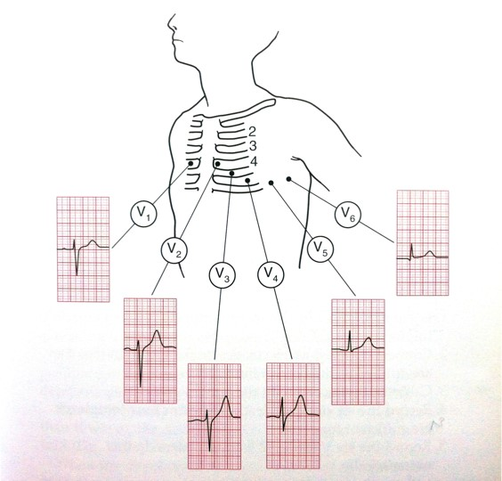 ECG - Fig 3 (electrical)