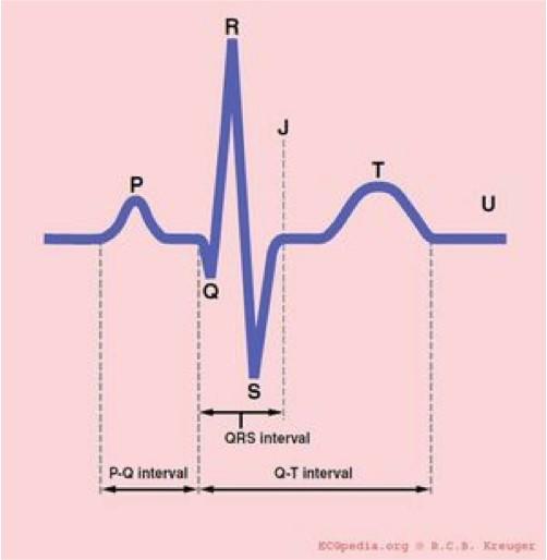 ECG - Fig 4 (ECG segments)