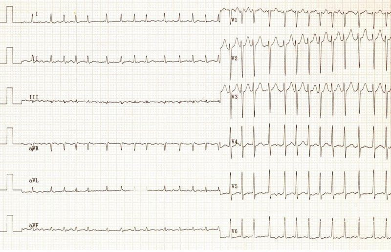graphic regarding Printable Ekg Strips named ECG (EKG) illustrations and quiz - Oxford Clinical Training