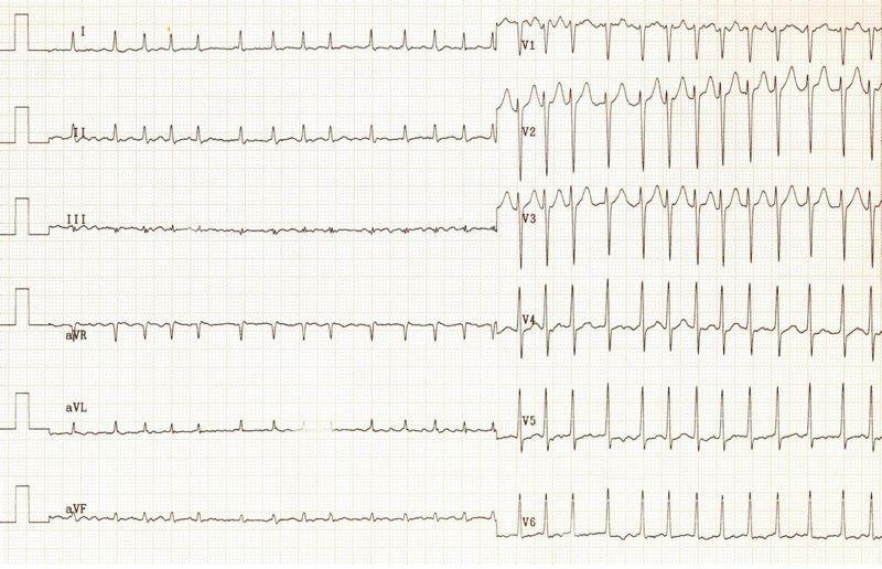 ECG - Question 1 (AF)