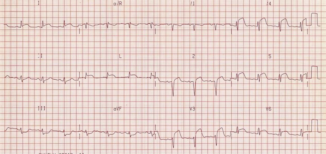 ECG - Question 10 (STEMI)