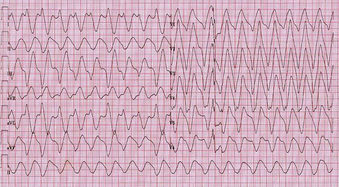 ECG - Question 11 (hyperkalaemia)