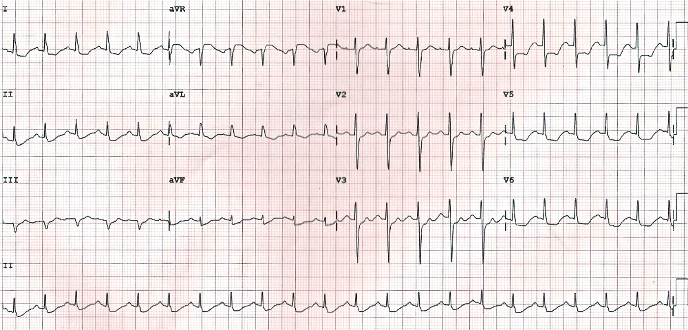 ECG - Question 12 (NSTEMI)