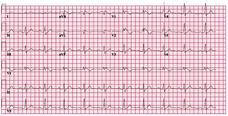 ECG - Question 14 (brugada syndrome)