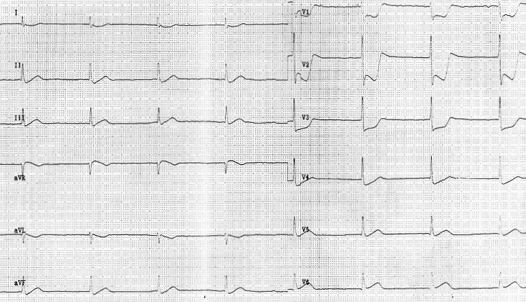 ECG - Question 15 (posterior infarct)