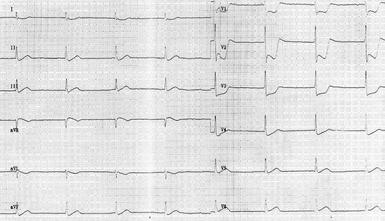 ECG - Question 15 (posterior infarct)