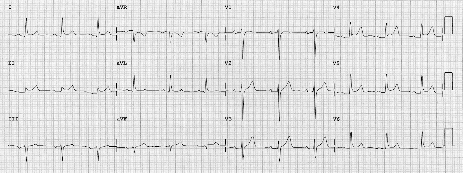 ECG - Question 16 (pericarditis)