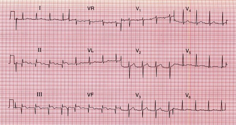 ECG - Question 17 (STEMI)