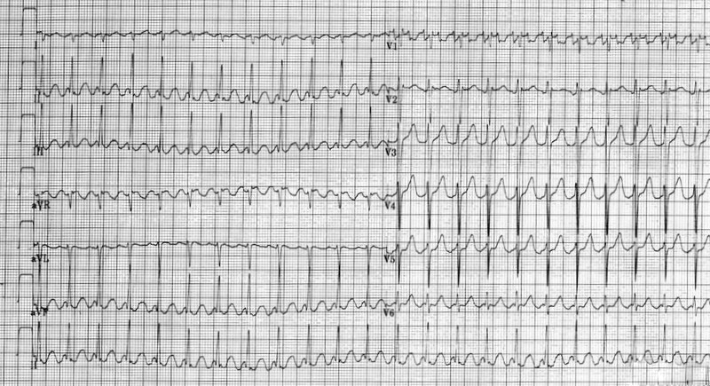 ECG - Question 2 (atrial flutter)