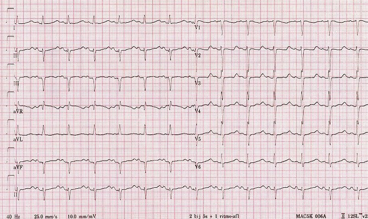 ECG - Question 20 (hypokalaemia)