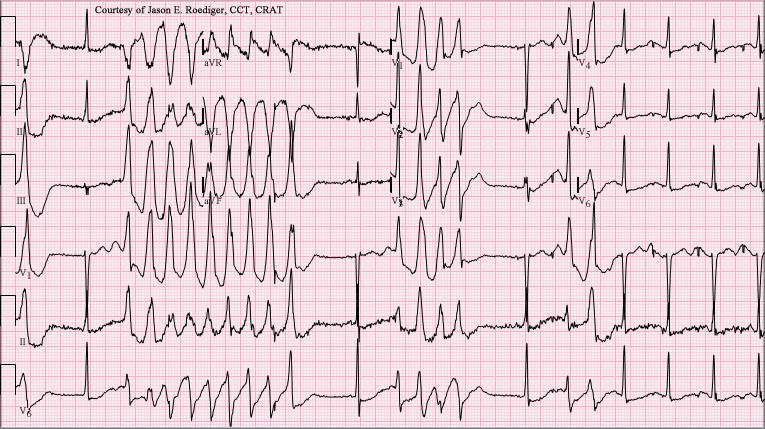 ECG - Question 22 (Torsades)