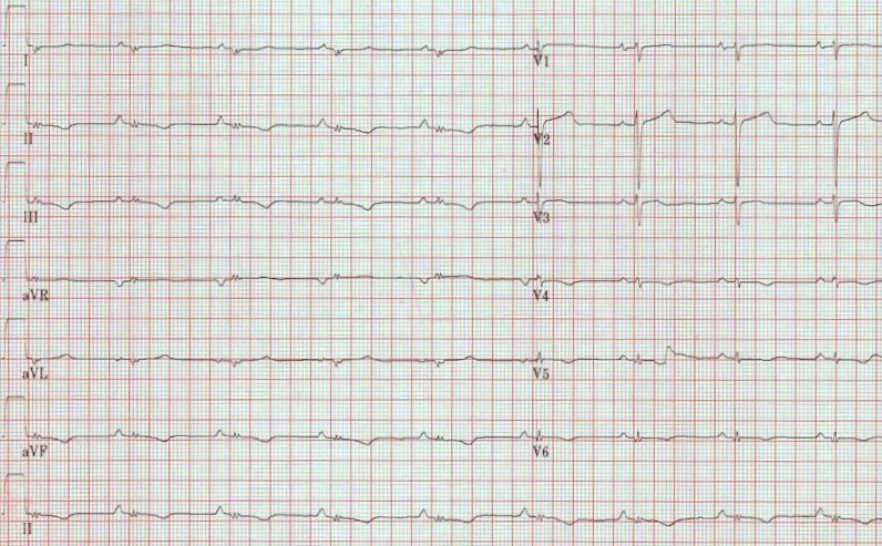 ECG - Question 4 (PEA)