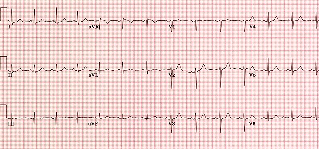 ECG - Question 5 (normal)
