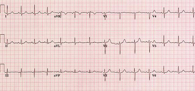ECG - Question 5 (normal)