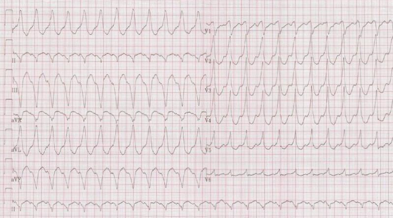 ECG - Question 6 (VT)