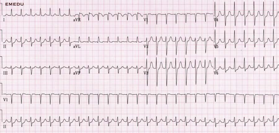 ECG - Question 7 (SVT)
