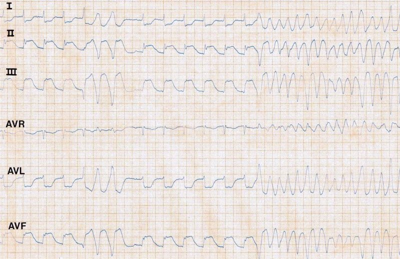 ECG - Question 8 (VF)