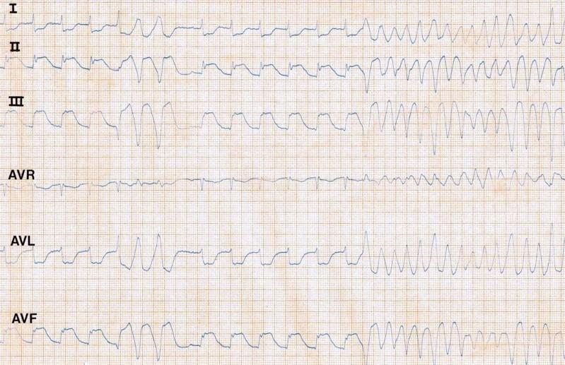 ECG - Question 8 (VF)