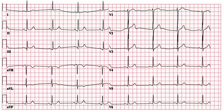 ECG - Question 9 (bradycardia)