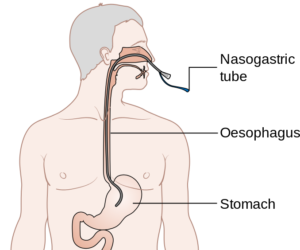 Correct placement of NG tube Cancer Research UK/Wikimedia Commons