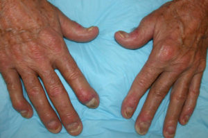 Psoriatic arthritis with dactylitis