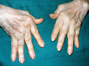 Classical changes in rheumatoid arthritis - hands