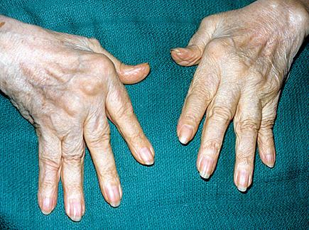 Hand Examination Oxford Medical Education