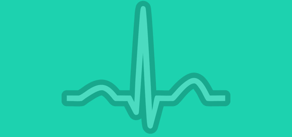 ECG (EKG) examples and quiz - Oxford Medical Education