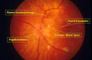 Hypertensive retinopathy signs on fundoscopy